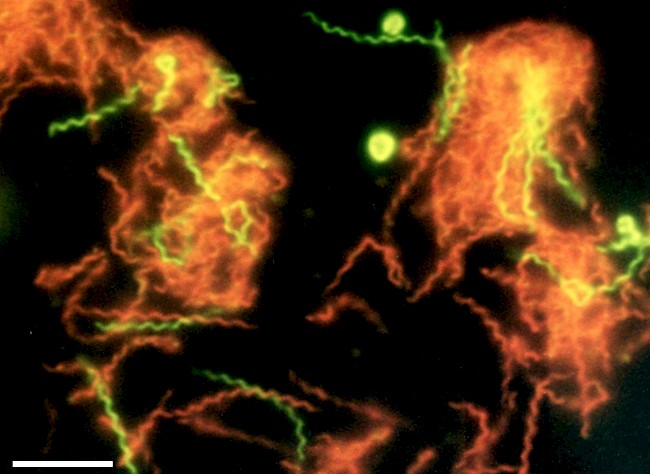 A microscopic photograph of fluorescent-stained <i>Spirochaeta americana</i> shows dead cells in red and living cells in green. Photo: Richard B. Hoover, Elena Pikuta, and Asim Bej, NASA/NSSTC University of Alabama at Huntsville, and the University of Alabama at Birmingham.